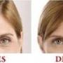 NO mas arrugas y lineas de expresion - Reduce los años de tu piel