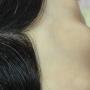 Protesis capilares, pelucas invisibles, integraciones capilares sin cirurgia newlacecu