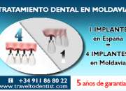 ¡implantes dentales a buen precio!