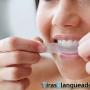 Mas blancos dientes solo en 3 dias!