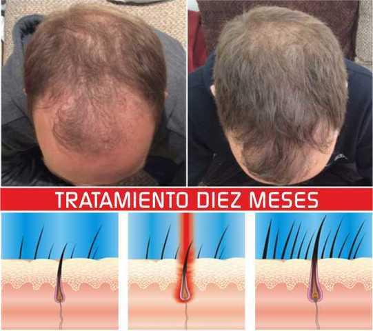 Laser dome 110 laser. terapia laser alopecia. aga.